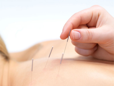 Does Acupuncture Work For Anxiety Problems